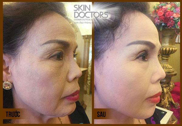 air-brush-face-10_skin