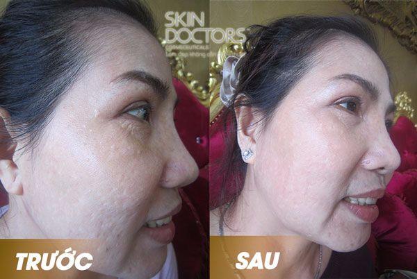 air-brush-face-5_skin