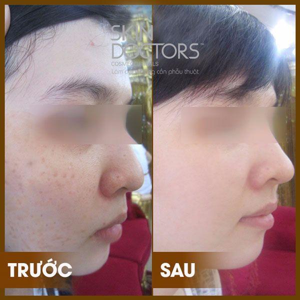 skinactive14-intensive-day-cream-11