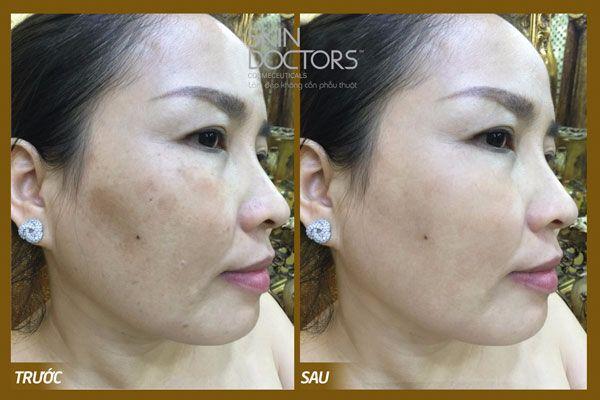 skinactive14-intensive-night-cream-13