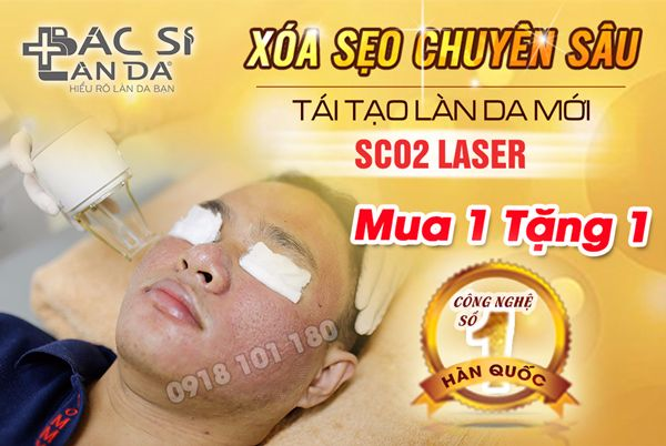 ctkm-se0-sco2-600x400